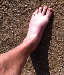 My feet could use a little sun too!