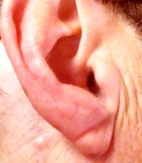 earlobe crease, heart disease